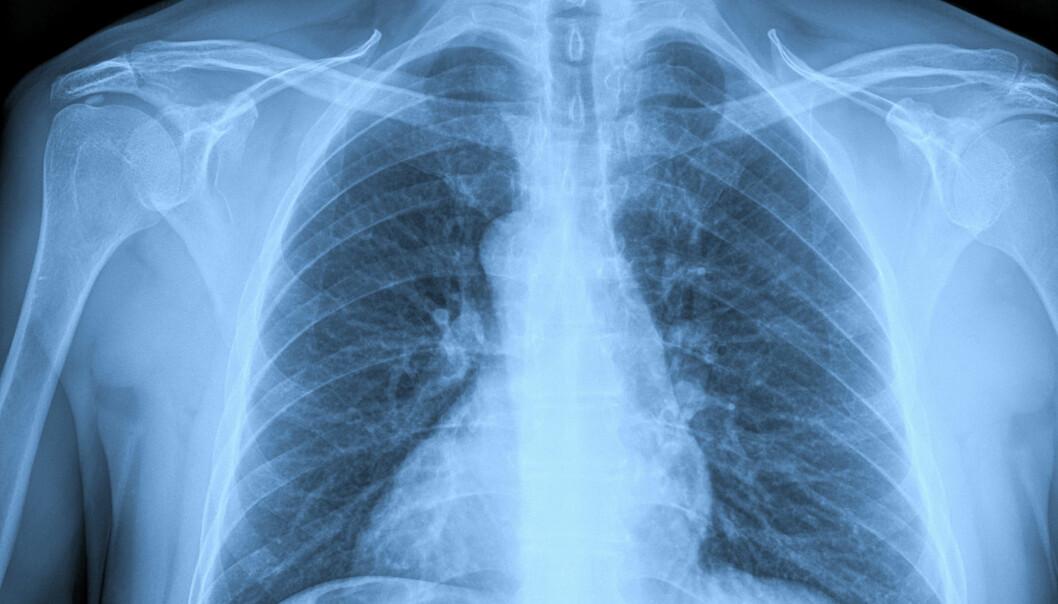 Noen typer brystkreft sender ut enzymer som baner veien for at kreften kan spre seg til skjelettet. (Foto: Colourbox)