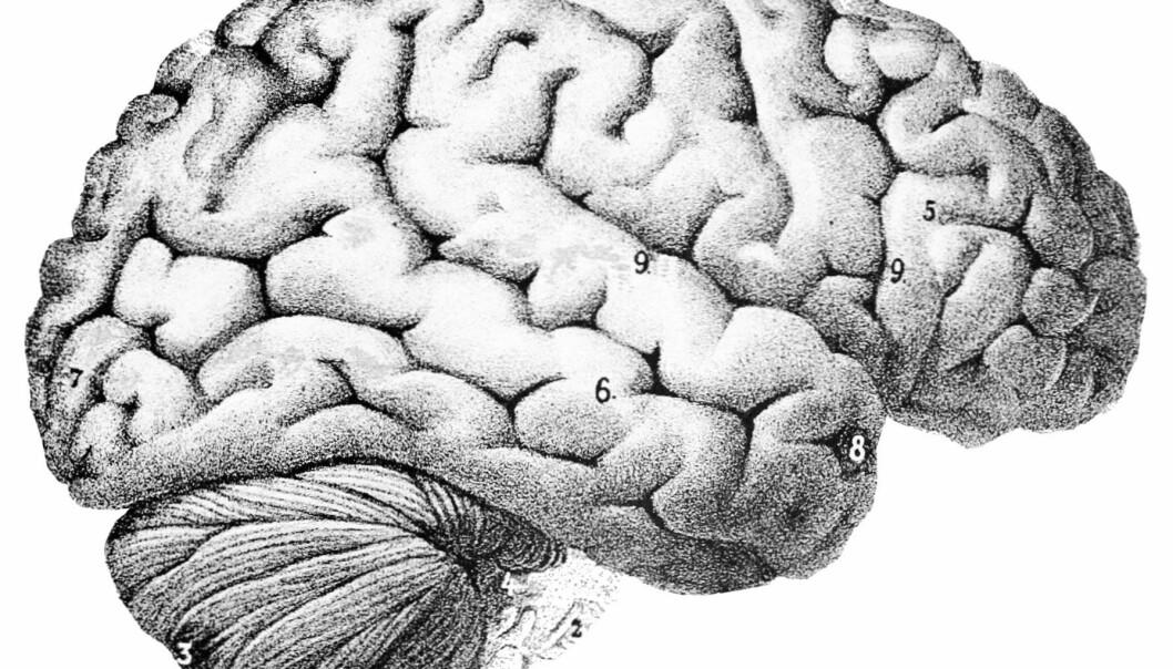 Hvis man har blitt rammet av en alvorlig infeksjon, er det risiko for at intelligensen har tatt skade, viser ny forskning.  (Illustrasjon: Popular Science Monthly Volume 46)