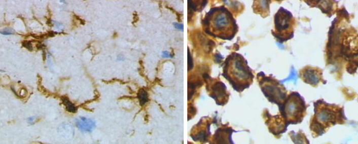 Mikrogliaceller er hjernens renovasjonsarbeidere og soldater som fjerner farlige stoffer. De bryter ned det farlige stoffet heme fra ødelagte røde blodlegemer, for eksempel etter en hjerneblødning, til blant annet karbonmonoksid eller kullos. Til venstre er mikrogliaceller fra en rottehjerne før en hjerneskade. Til høyre er mikrogliacellene aktivert etter hjerneskaden. (Foto: (Mikroskopi: Grzegorz Wicher, Wikimedia Commons))