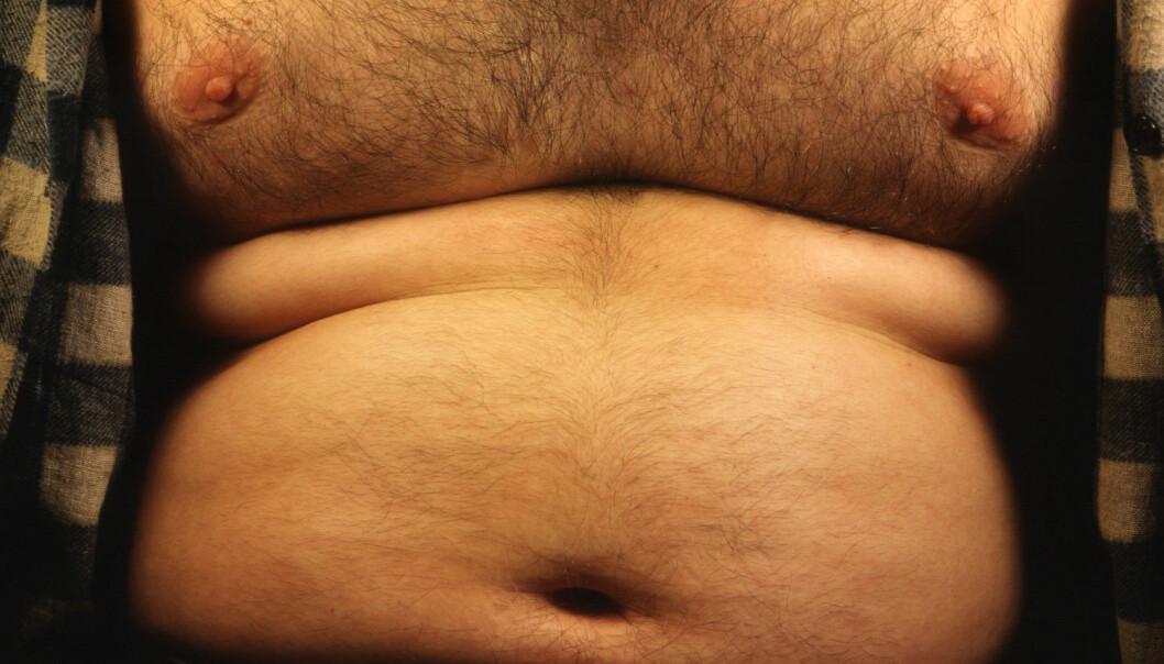 Mannlig brystkreft er sjelden. Det kan komme som et stort sjokk for menn å få konstatert at de er rammet av sykdommen. Overvekt øker risikoen.  (Illustrasjonsfoto: Science Photo Library)