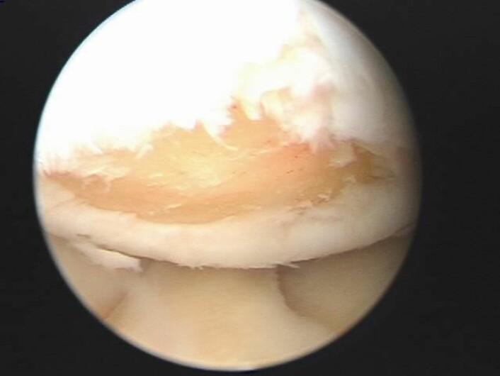 Bruskdefekt i kne. Brusken er så skada at beinet kjem til syne. (Foto: Ahus)