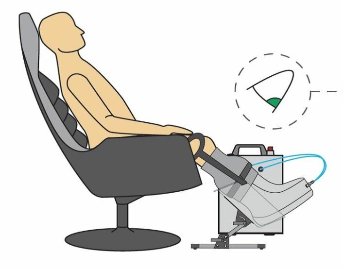 Utstyret Otivio utvikler består av en støvel med et pulserende undertrykk som masserer beina. (Foto: (Illustrasjon: Otivio))