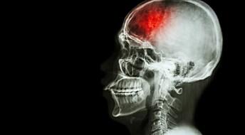 Genet som beskytter mot slag, men øker faren for blodpropp