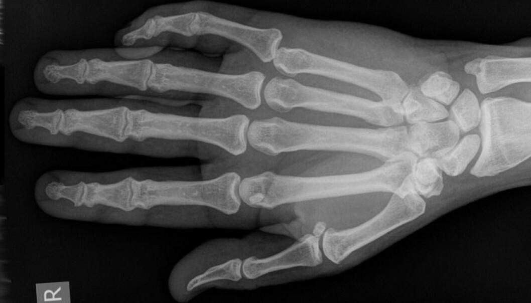 Forskere har MR-filmet hvordan knekkelyden oppstår når du tøyer og bøyer på fingrene dine. (Foto: Hellerhoff, Wikimedia Commons. Lisens: Creative Commons Navngivelse-DelPåSammeVilkår 3.0 Unported)