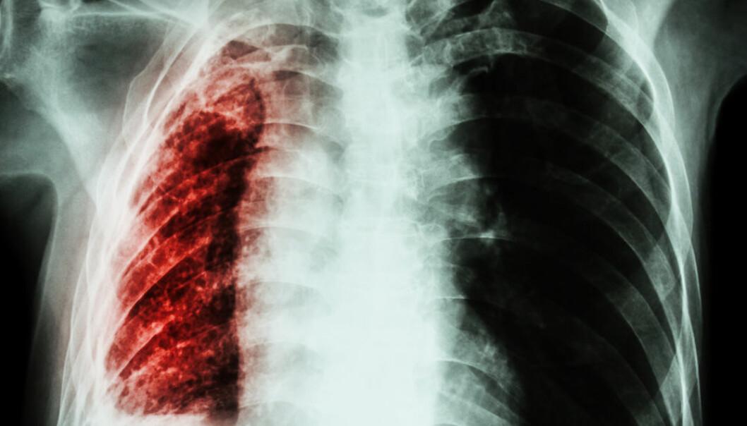 Tuberkulose tar 4000 liv hver dag. (Foto: Colourbox)