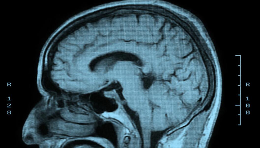 MRI-skanning av en hjerne. Forskerne fant endringer i volumet av hvit substans og grå materie i ulike deler av hjernen hos deltakere som hadde fått hodeskader etter ulykker eller overfall. Endringene tilsvarte flere års aldring. (Foto: Microstock)