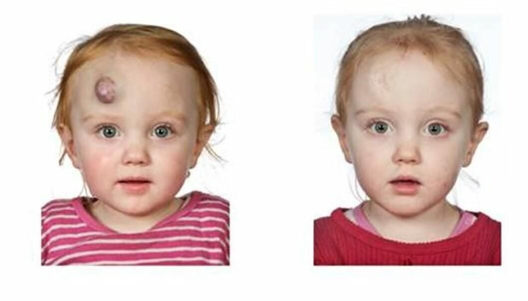 Før- og etter-bilde av en pasient som er behandlet med propranolol ved Aarhus universitetssykehus.  (Foto: Aarhus universitetssykehus)