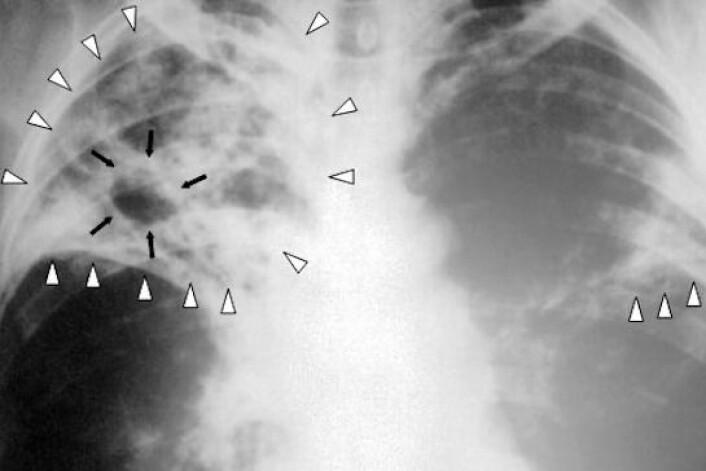 Tuberkulose er en infeksjonssykdom som typisk setter seg i lungene. Den kan oppdages i det slimet, også kalt sputum, som sitter i de nedre luftveiene. (Foto: Center for Disease Control and Prevention)