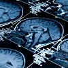 glutamat i hjernen