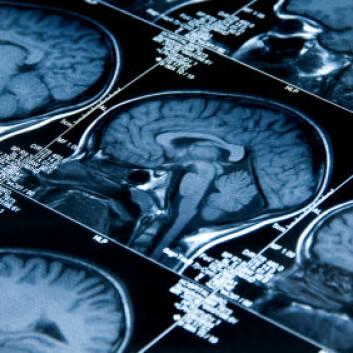 MRI av en hjerne. Hvor plastisk er den etter at den har blitt voksen?(Illustrasjonsfoto: iStockphoto) (Illustrasjonsfoto: iStockphoto)