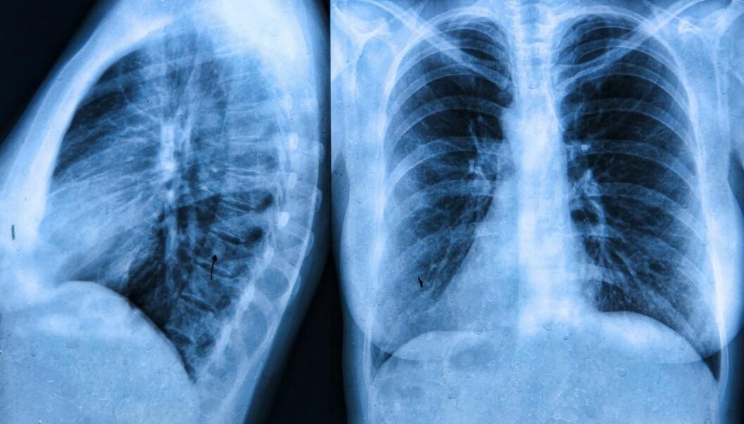Cystisk fibrose er en sjelden sykdom som kan gjøre at de som sliter med lidelsen får slim i lungene. (Illustrasjonsfoto: Colourbox)