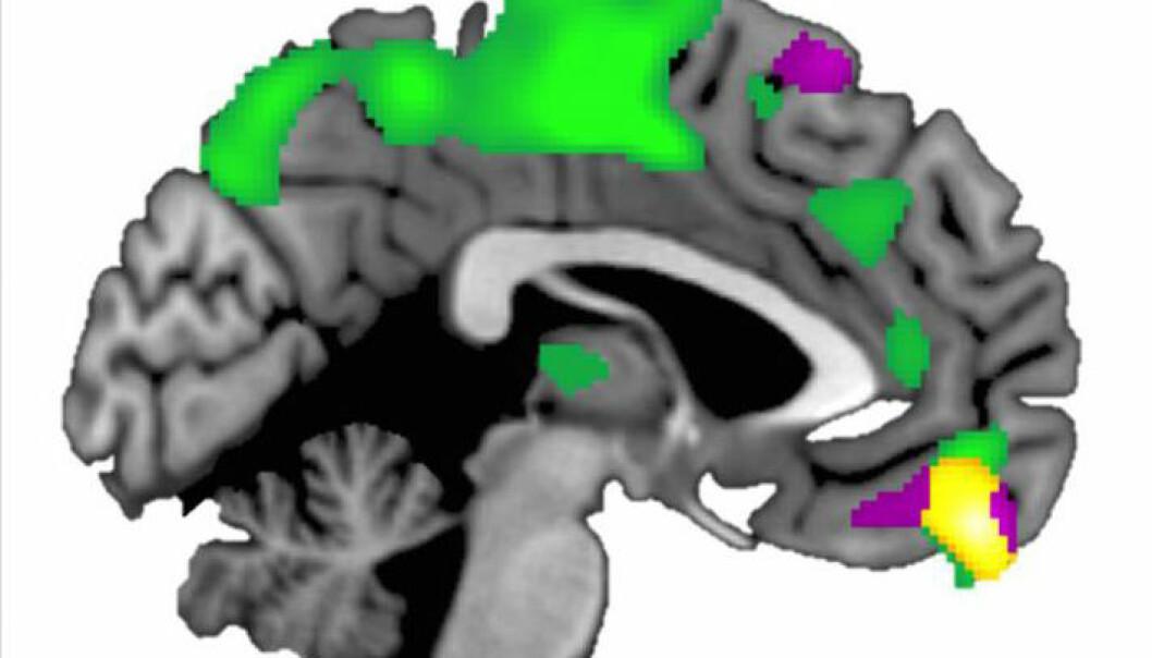Den ventromediale prefrontale cortexen (gult område) er større hos mennesker som stoler på andre enn hos de mer mistenksomme. (Illustrasjon: Brian Haas, University of Georgia)