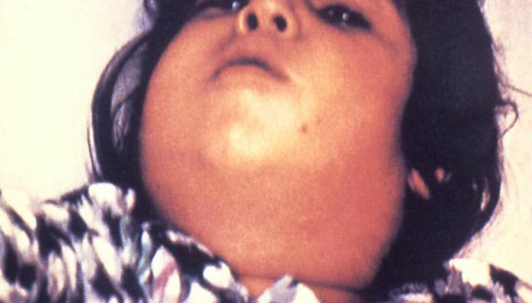 Difteri er en alvorlig sykdom, særlig for barn. Halsen kan hovne så mye opp at det blir vanskelig å puste. (Foto: Public Health Image Library, Centers for Disease Control and Prevention)