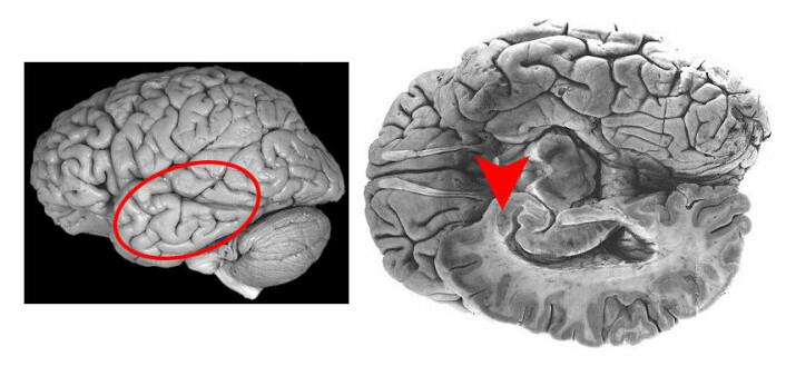 Disse to bildene viser menneskehjernen. Området som kalles amygdala er markert med sirkel og pil. Data fra amygdala ligner på data som NTNU-forskerne har funnet i nattsvermerens laterale horn.  (Foto: (Illustrasjon: NTNU))