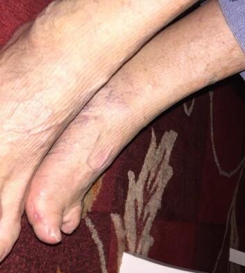 Den venstre foten til Marie Nilsson er i størrelse 34 etter polioangrepet, fire skostørrelser mindre enn den høyre. Hun må bruke spesialsko for å kunne gå, og har gjennomgått utallige operasjoner.  (Foto: Paul Hans Nilsson)