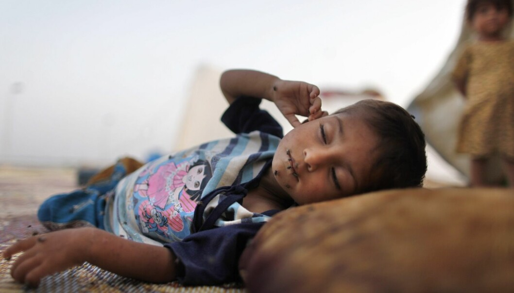 To millioner barn mellom ett og fire år dør årlig av diaré og lungebetennelse. Denne pakistanske ettåringen er hardt rammet av diaré. (Foto: Tim Wimborne/Reuters)