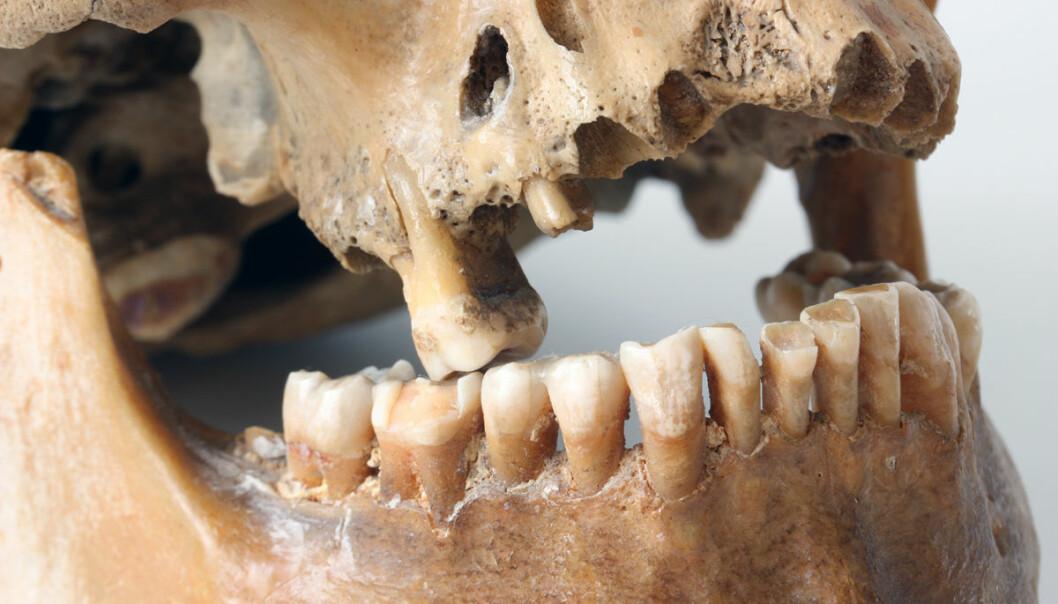 Dårlig tannpuss og tannlegeskrekk? Nifse sykdommer truer i munnhulen. (Illustrasjonsfoto: Colourbox)
