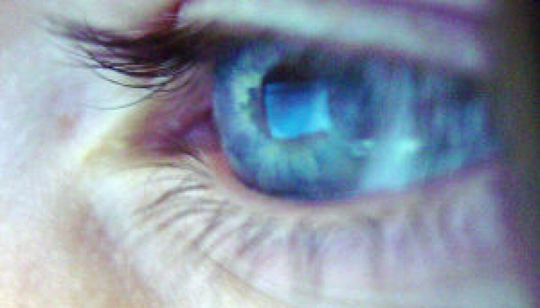 Stirrer du på skjermen hele tiden, kan du få tørre øyne og problemer med å fokusere. (Illustrasjonsfoto: iStockphoto)