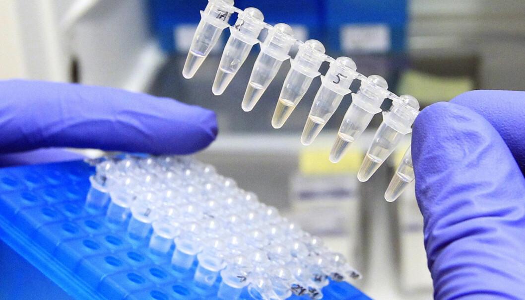 Ved hjelp av en analyse av genenes naturlige aktivitet i 77 840 prøver fra forskjellige vev og celletyper har forskere utviklet en ny metode for å oppdage om man har for mange eller for få gener. (Foto: Lise Åserud, NTB Scanpix)