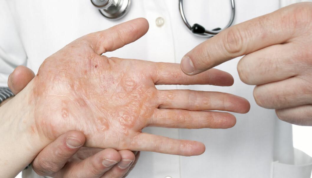 Mange plages av eksem og andre hudsykdommer. Likevel står det dårlig til med hudforskningen i Norge.  (Foto: Microstock)