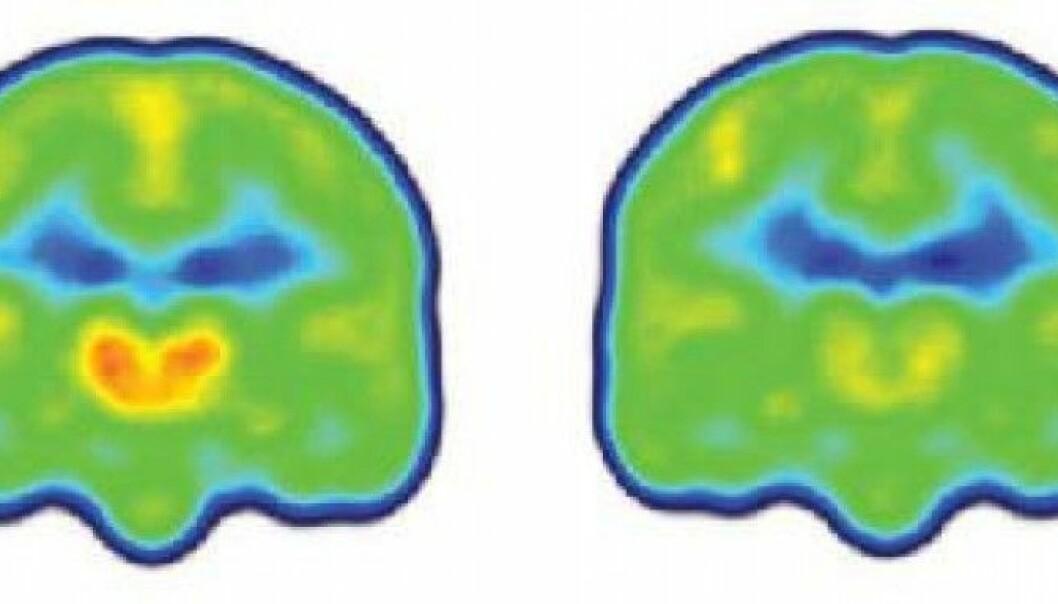 Forskningen viser at smertepasientene hadde vesentlig høyere nivåer av proteinet TSPO i deler av hjernen som har å gjøre med nettopp smerte. Figuren viser et gjennomsnitt av nivåene av proteinet (orange) i hjernene til smertepasienter (til venstre) og friske. (Illustrasjon: Marco Loggia, PhD, Martinos Center for Biomedical Imaging, Massachusetts General Hospital)