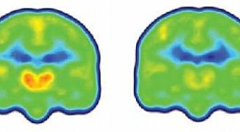 Så ryggsmertene i pasientenes hjerne