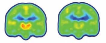 Forskningen viser at smertepasientene hadde vesentlig høyere nivåer av proteinet TSPO i deler av hjernen som har å gjøre med nettopp smerte. Figuren viser et gjennomsnitt av nivåene av proteinet (orange) i hjernene til smertepasienter (til venstre) og friske. (Foto: Colourbox)
