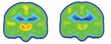 Forskningen viser at smertepasientene hadde vesentlig høyere nivåer av proteinet TSPO i deler av hjernen som har å gjøre med nettopp smerte. Figuren viser et gjennomsnitt av nivåene av proteinet (orange) i hjernene til smertepasienter (til venstre) og friske.