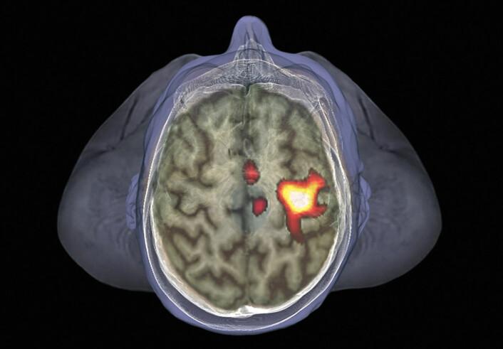 Hjerneskanning av 35 år gammel mann, med fMRI-metoden. Denne metoden måler blodgjennomstrømning i forskjellige områder av hjernen. Områder med høyere blodgjennomstrømning har mer nerveaktivitet, og lyser opp i bildet. Her lyser deler av den motoriske hjernebarken opp, fordi forsøkspersonene rører på venstre hånd. (Foto: Science Photo Library)