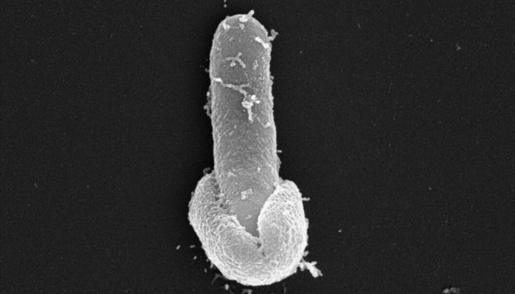 Denne bakterien kan ha lagt seg til å sove da Harald Hårfagre var konge i Norge, og våkner en dag du står og lager ris eller pasta på kjøkkenet. Resultatet kan bli kvalme, oppkast, magesmerter og diaré. Bildet viser Bacillus licheniformis som kommer ut fra sporeskallet og er tatt gjennom scanning-elektronmikroskop av Antje Hoenen (SEM Lab, UiO) og Elisabeth H. Madslien (Forsvarets Forskningsinstitutt).