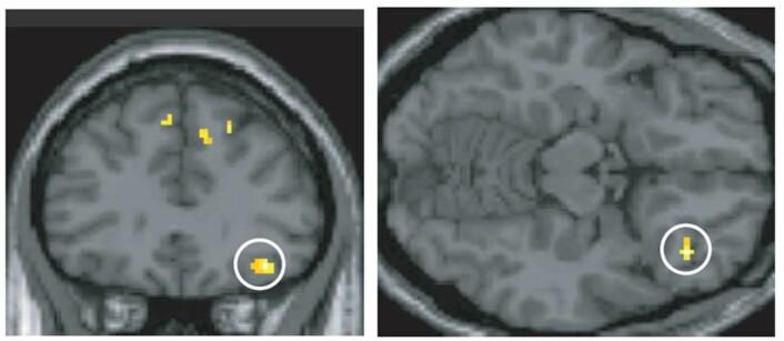 To regioner av hjernen ble aktivert i eksperimentet; fremre delen av tinninglappen og frontallappens underside. Dette er områder som allerede er kjent for å bringe sammen ulike sanser. Over er frontallappen. (Foto: Jonas Olofsson/Stockholm universitet)