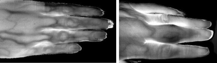 Hyperspektrale bilder viser detaljer inne i fingrene. (Foto: Lise Randeberg)
