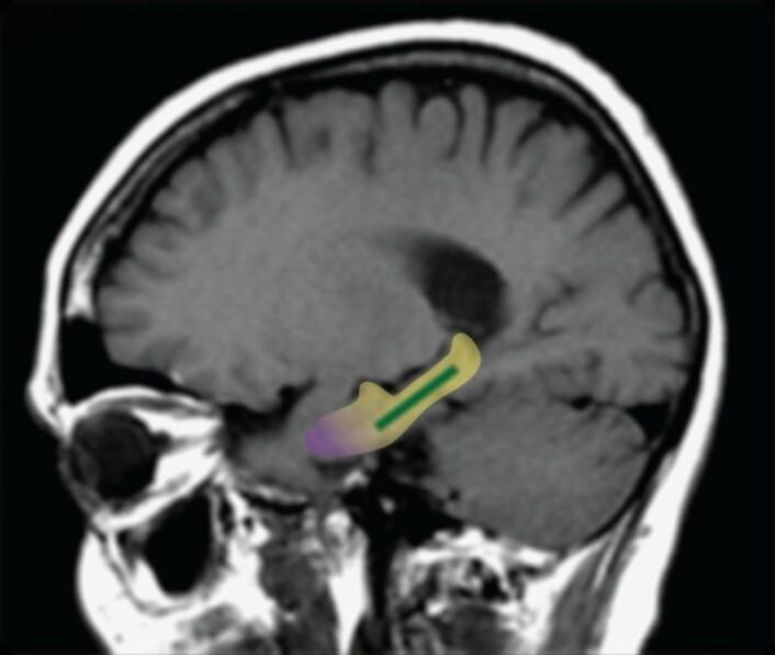 Det fargede området på bildet kalles dentate gyrus. Dette området blir mindre aktivt når vi blir eldre, og samtidig blir vi dårligere til å gjenkjenne objekter eller mønstre. (Foto: Scott A. Small)