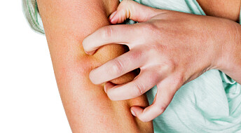 Allergi mot metaller kan føre til sjelden hudkreft