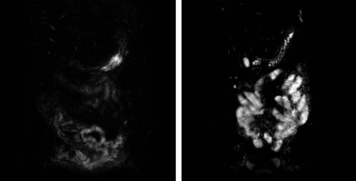 Tydelig forskjell: Til venstre tarmene til en frisk person og til høyre tarmene til en IBS-pasient, 60 minutter etter at de har fått laktulose. De hvite områdene viser at personen med IBS har vesentlig mer væske i tynntarmen. (Foto: Ragnhild Undseth)
