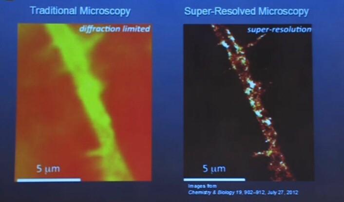 Bildet viser hvor mye klarere mikroskopiske bilder blir av de nye teknikkene. Bildet til høyre er tatt gjennom et fluorescensmikroskop. (Foto: Skjermdump)