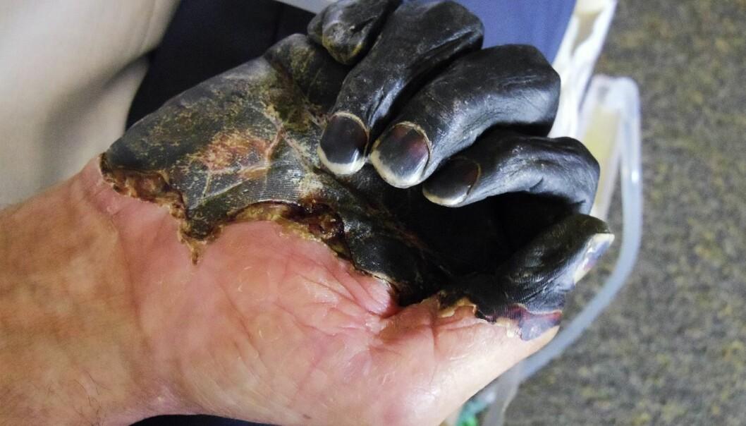 Denne pasienten har fått kolbrann som følge av bakterien Yersinia pestis, den samme som blant annet stod bak Svartedauden, og som førte til at en stor andel av Europas befolkning døde.  (Foto: Scanpix, Science photo library)