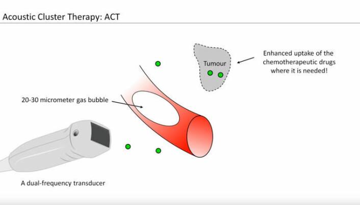 To-frekvent ultralyd manipulerer mikrobobler for å øke opptaket av cellegift til en kreftsvulst. (Illustrasjon fra presentasjon som viser metoden til Kenneth Kirkeng Andersen)