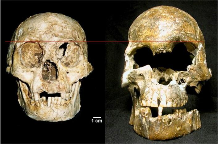 Sammenligning av kranier fra LB1 og fra et moderne menneske fra samme tid og sted. LB1 er kraniet til venstre. Legg merke til hvordan kraniet er asymmetrisk. Amerikanske forskere mener personen led av Downs syndrom, og at kraniet ikke stammer fra en annen art.  (Foto: Eckhardt & Henneberg)