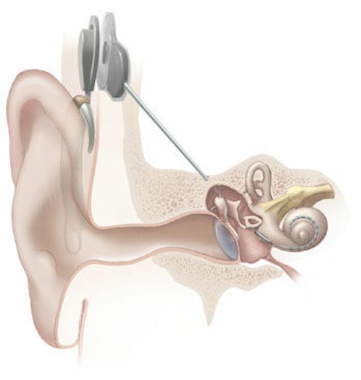 Cochlear-implantatet kobles direkte inn i øret, hvor det gir elektriske impulser. Det stimulerer hørselsnerven slik at hjernen oppfatter lyder.  (Foto: (Illustrasjonsbilde: National Institutes of Health/Wikimedia commons))