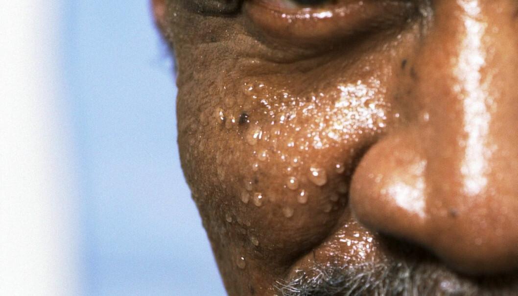 Blir du kvitt giftstoffene på denne måten? Og hvor farlige er de nå egentlig, disse giftstoffene vi har i kroppen vår?