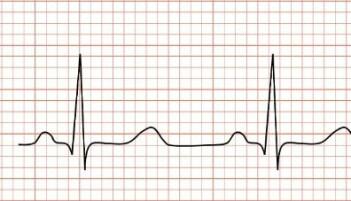 Elektrokardiografi (EKG) måler elektriske signaler fra hjertet.