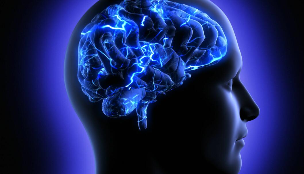 Forskere fra hele verden kritiserer hjerneforskningsprosjektet Human Brain Project for å ha en for snever tilnærming. (Foto: Microstock)