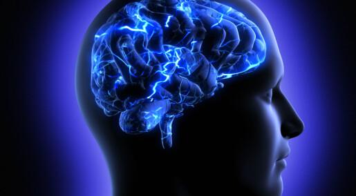 Enormt hjerne-prosjekt på vei mot fiasko