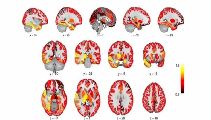 Hjernens grå substans økte i volum etter elektrosjokk-behandling.