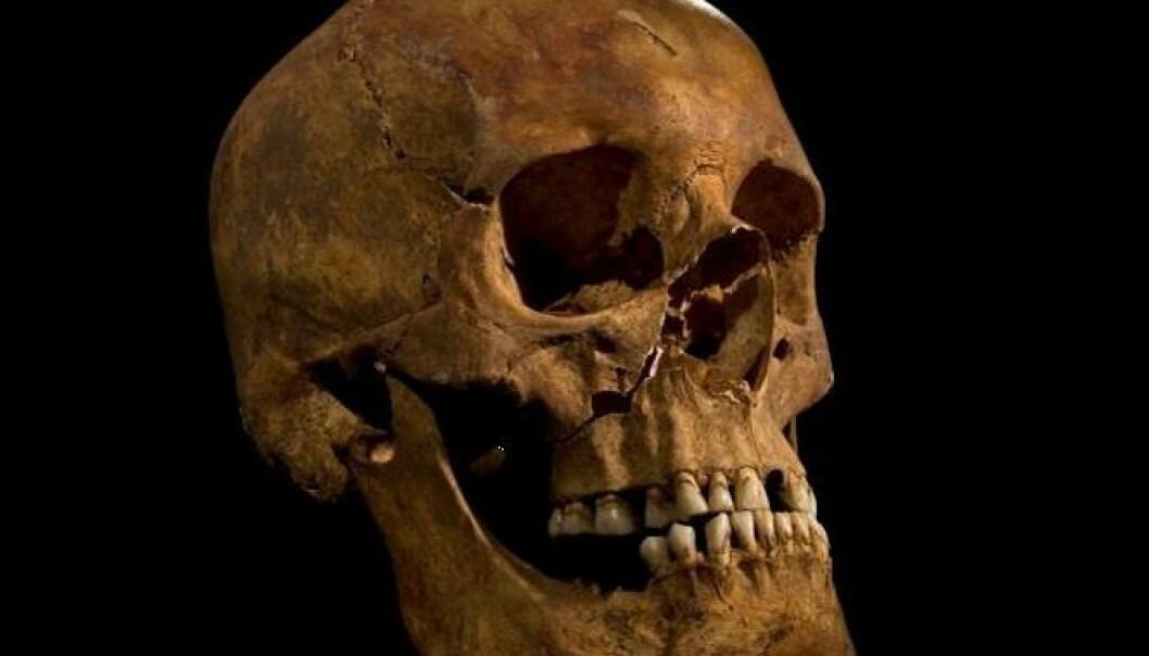 Skallen til Richard III ble funnet sammen med resten av skjelettet, i en slumsete grav under en parkeringsplass.  (Foto: University of Leicester)