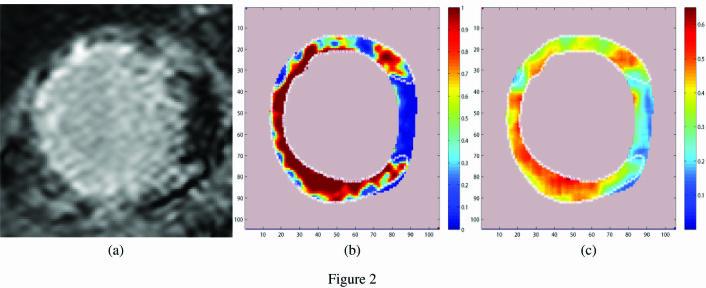 Bilde a) viser et MR-bilde av en pasients venstre hjertekammer. Lyse områder indikerer arr i hjertet. Bilde b) er et såkalt probability map som anslår sannsynligheten for arr, basert på intensiteten i det enkelte punkt i bildet. Mørkerøde områder indikerer 90-100 prosent sannsynlighet, rød 80-90 prosent. Sannsynligheten faller videre gjennom gul, grønn, lyseblå og til slutt blå, som representerer en risiko på 0-20 prosent. Bilde c) har samme fargekoding, men baserer seg på hvor grov eller fin teksturen i bildet er. Sammen kan de tre bildene bli et godt verktøy for legene til å anslå faren for at hjertepasienten skal få tilbakefall.   (Foto: UiS)