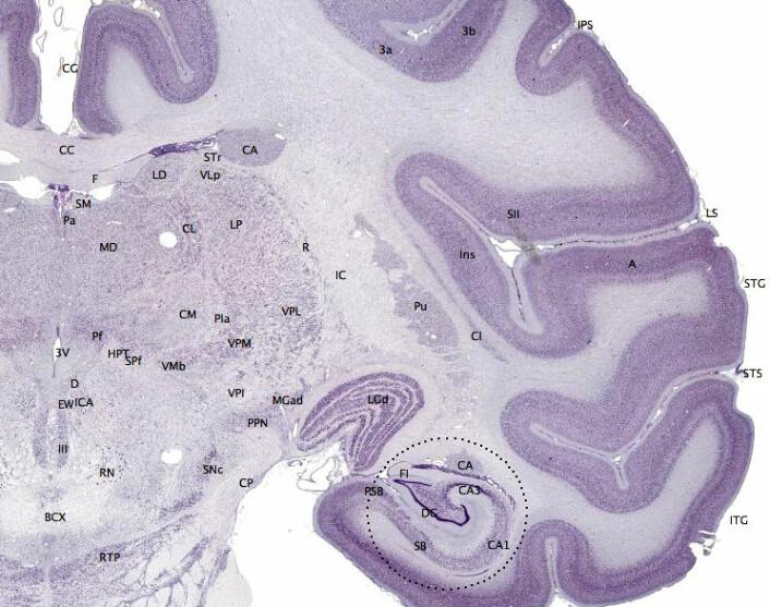 Hjernebarken (mørk fiolett på bildet) hos mennesker og andre pattedyr gir evne til oppmerksomhet, oppfatning, tanke, språk og bevissthet. Fisk har ikke hjernebark. (Foto: (Bilde: brainmaps.org, Creative Commons Attribution 3.0 License))