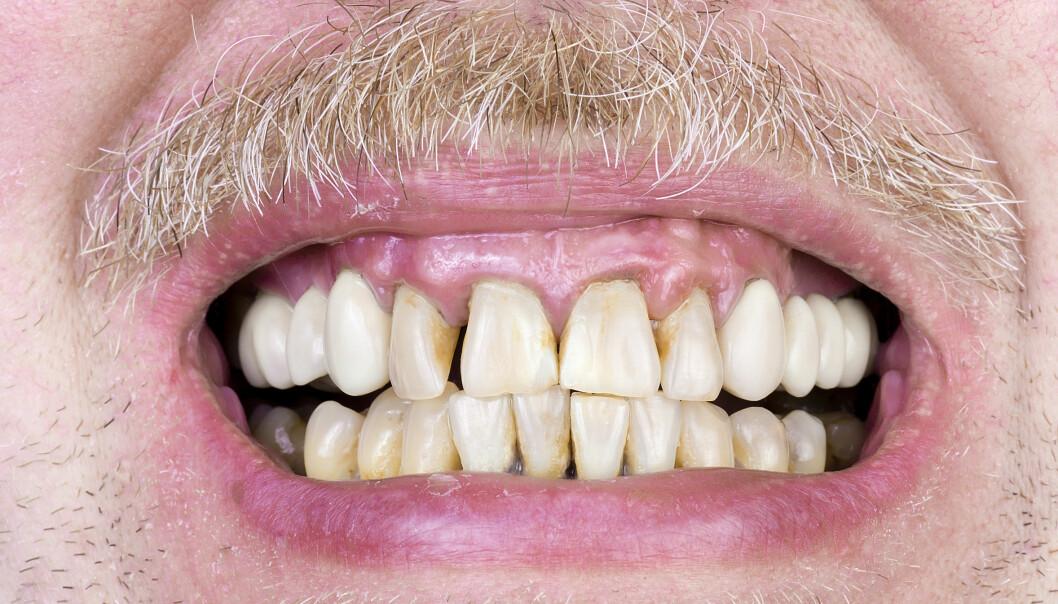 Eldres tenner får råtne på rot og kan få uopprettelige skader så lenge tannhelsetjeneste ikke er del av oppfølging ved alvorlig sykdom, viser ny forskning. (Foto: Microstock)