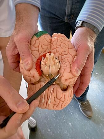 Her ligger hjerneområdet lateral entorhinal cortex - området som styrer med tidssansen og innholdet i minner. (Foto: Kavli Institute for Systems Neuroscience)